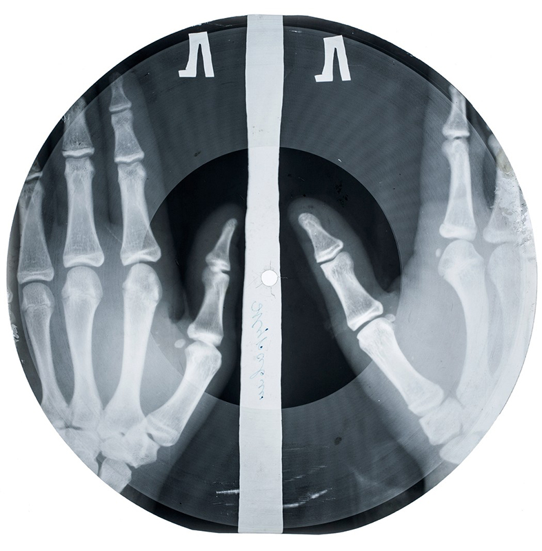 Bill Haley -'Rock around the clock'. Imagen: X-Ray audio.
