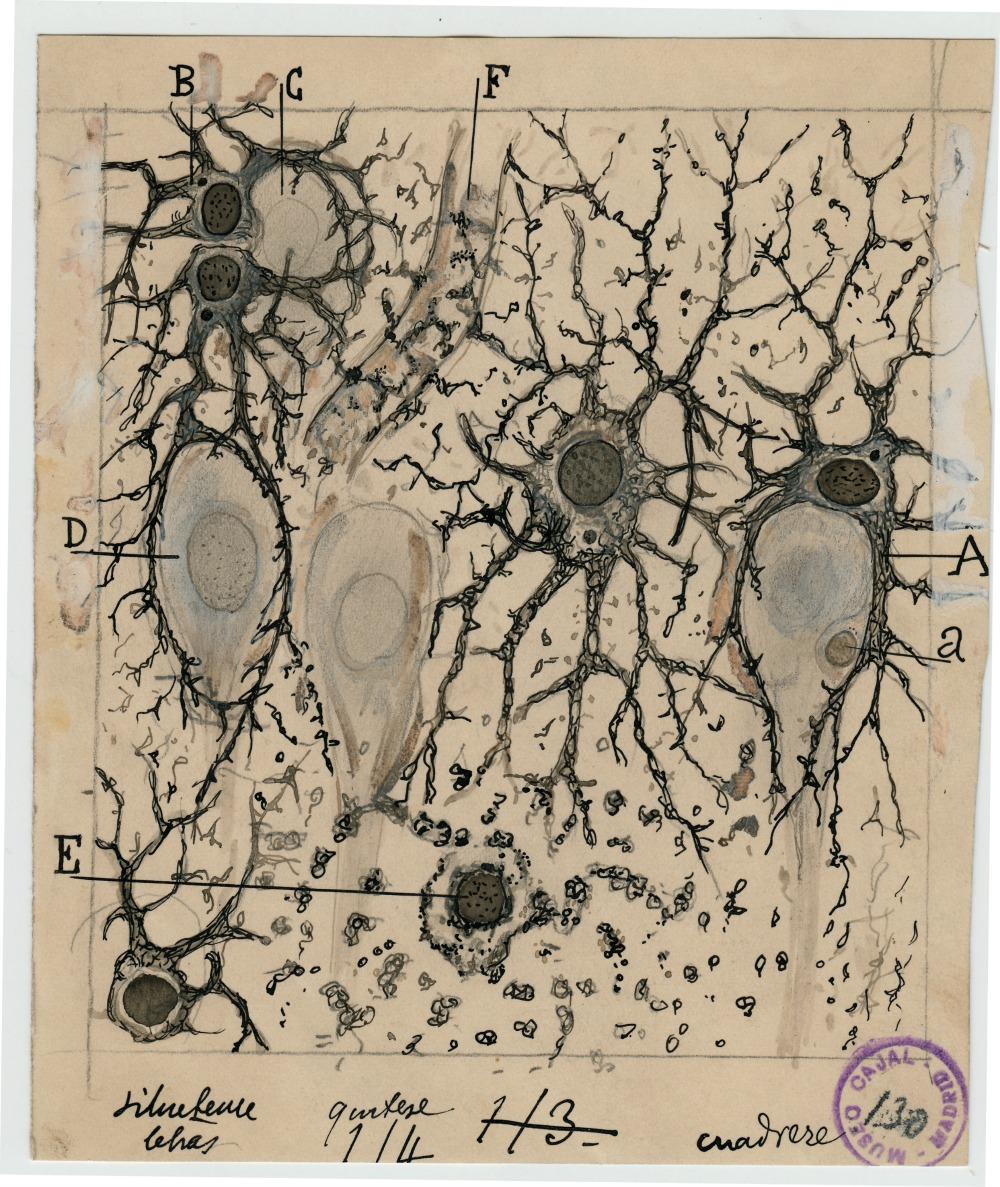 beautiful-brain-publicity_03_017_m130_general-adj
